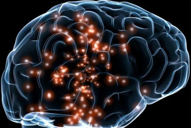 Особенности псевдобульбарного и бульбарного синдромов и что это такое?