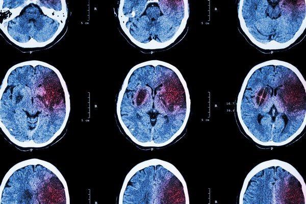 Что это такое - болезнь БАС: синдромы и лечение болезни Шарко