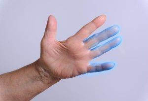 Что это такое - миелит: причины, симптомы и лечение
