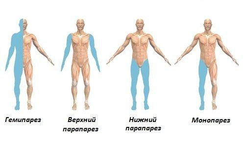 Как лечат парезы конечностей и что это такое