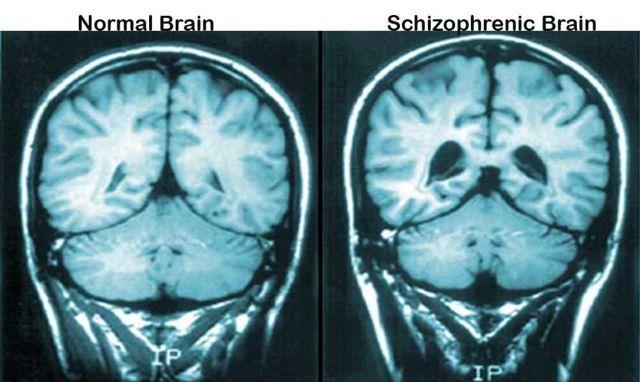 Параноидная шизофрения: симптомы, признаки, лечение