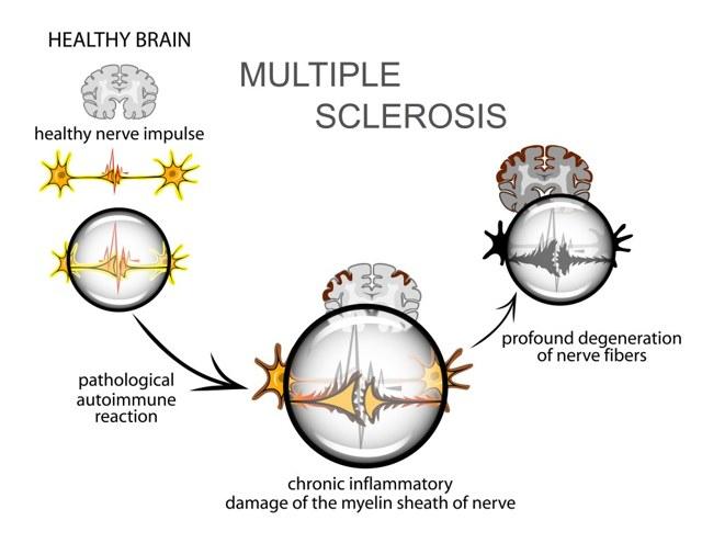 Рассеянный склероз, его симптомы и признаки у женщин