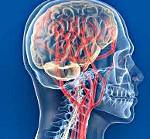 Нейроциркуляторная дистония (НЦД) по гипотоническому типу