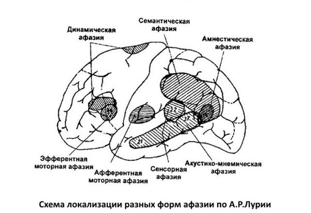 Моторная и сенсорная афазия, что это такое?