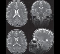Синдром Ретта — что представляет собой эта патология?