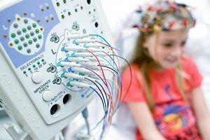 Лечится ли полностью эпилепсия у взрослых