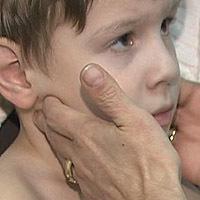 Хорея — её причины, последствия и лечение