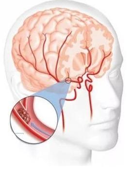 Что это такое - гипертензивная энцефалопатия