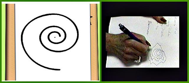 Дрожание (или тремор) конечностей