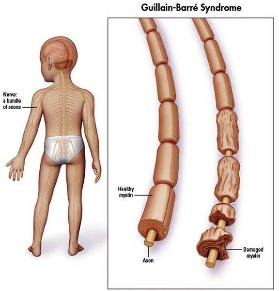 Синдром Гийена-Барре: симптомы и лечение