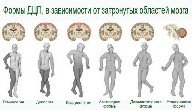 Церебральный паралич: расшифровка ДЦП, признаки и лечение
