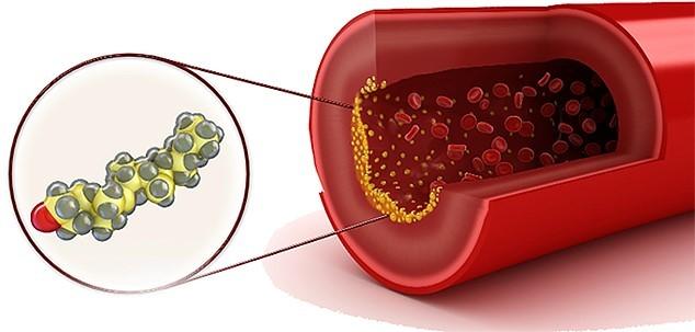 Фитомуцил слим смарт для похудения: Отзывы, цена